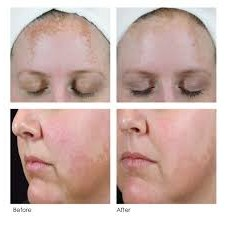 2 oz. A Peel Daily and 1 oz. Hyaluronic Acid